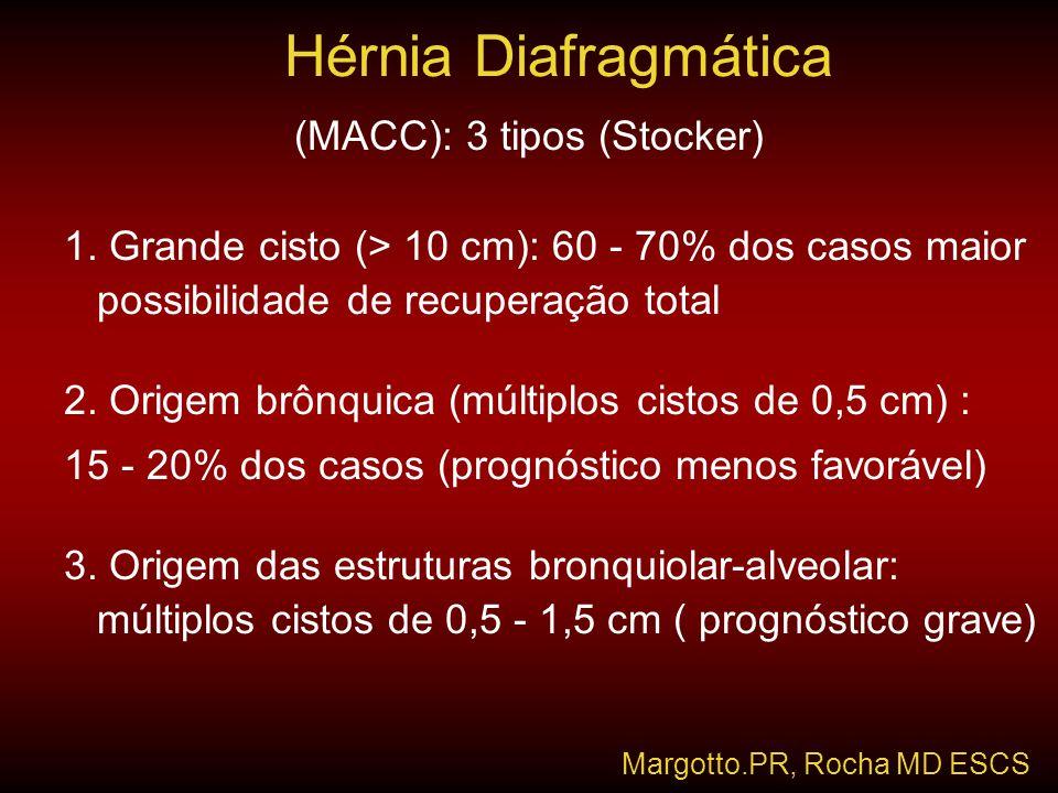 (MACC): 3 tipos (Stocker)