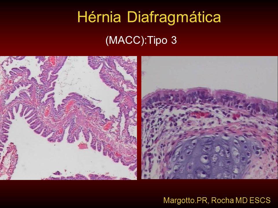 Hérnia Diafragmática (MACC):Tipo 3 Margotto.PR, Rocha MD ESCS