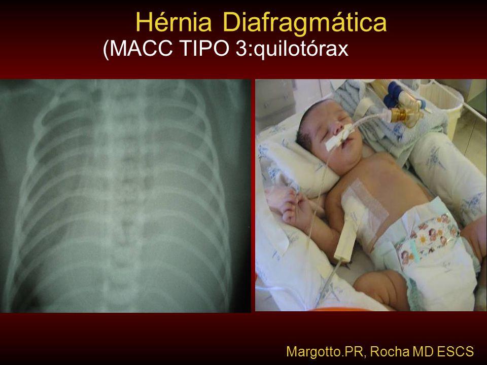 Hérnia Diafragmática (MACC TIPO 3:quilotórax