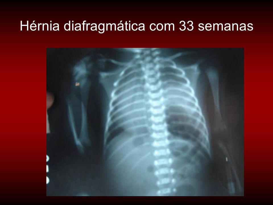 Hérnia diafragmática com 33 semanas
