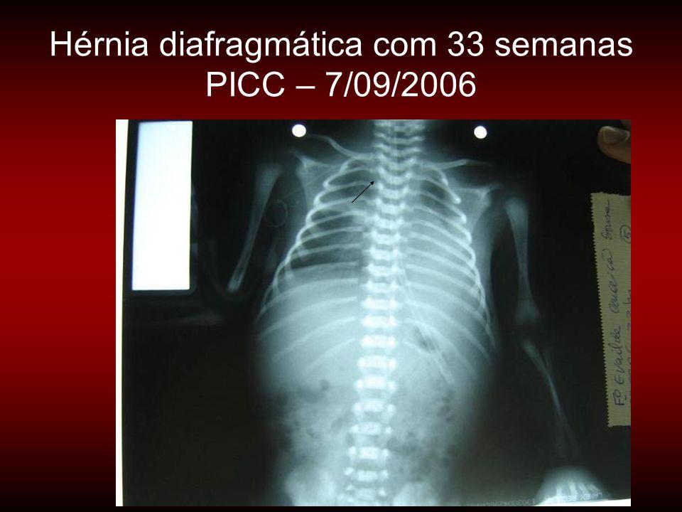Hérnia diafragmática com 33 semanas PICC – 7/09/2006