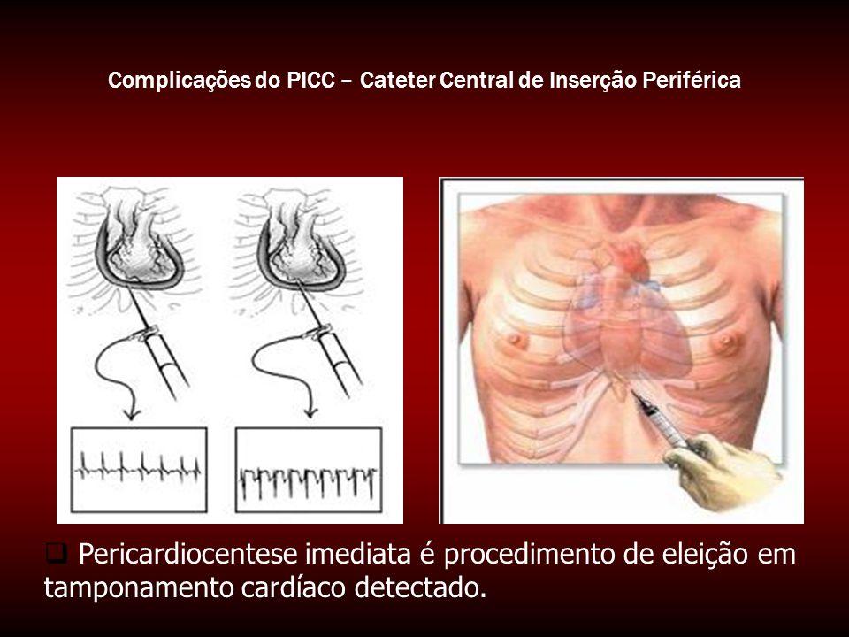 Complicações do PICC – Cateter Central de Inserção Periférica