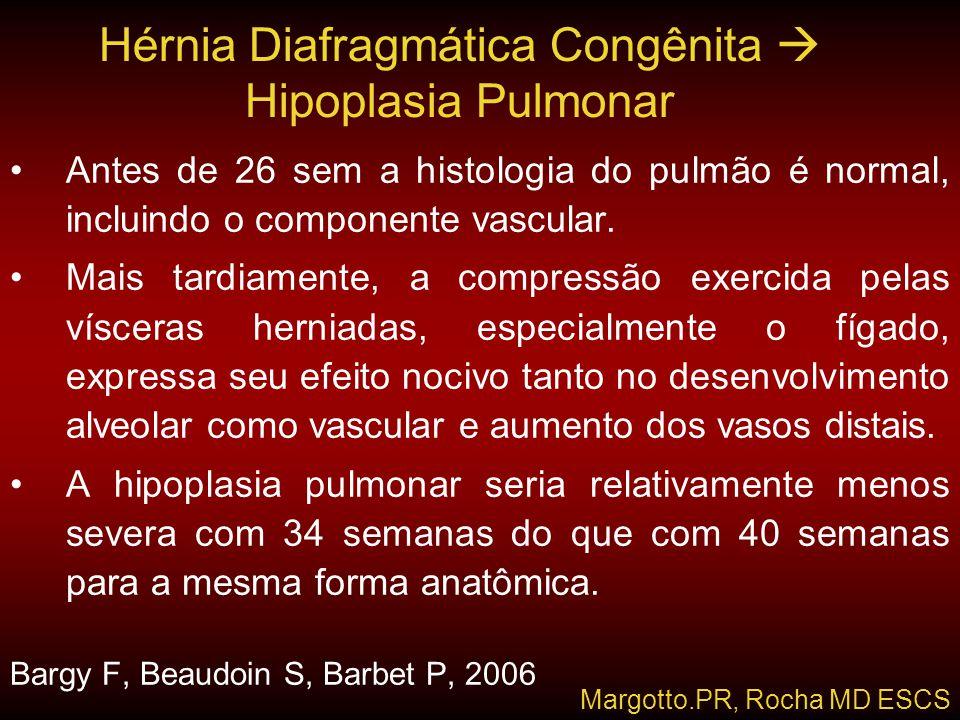 Hérnia Diafragmática Congênita  Hipoplasia Pulmonar