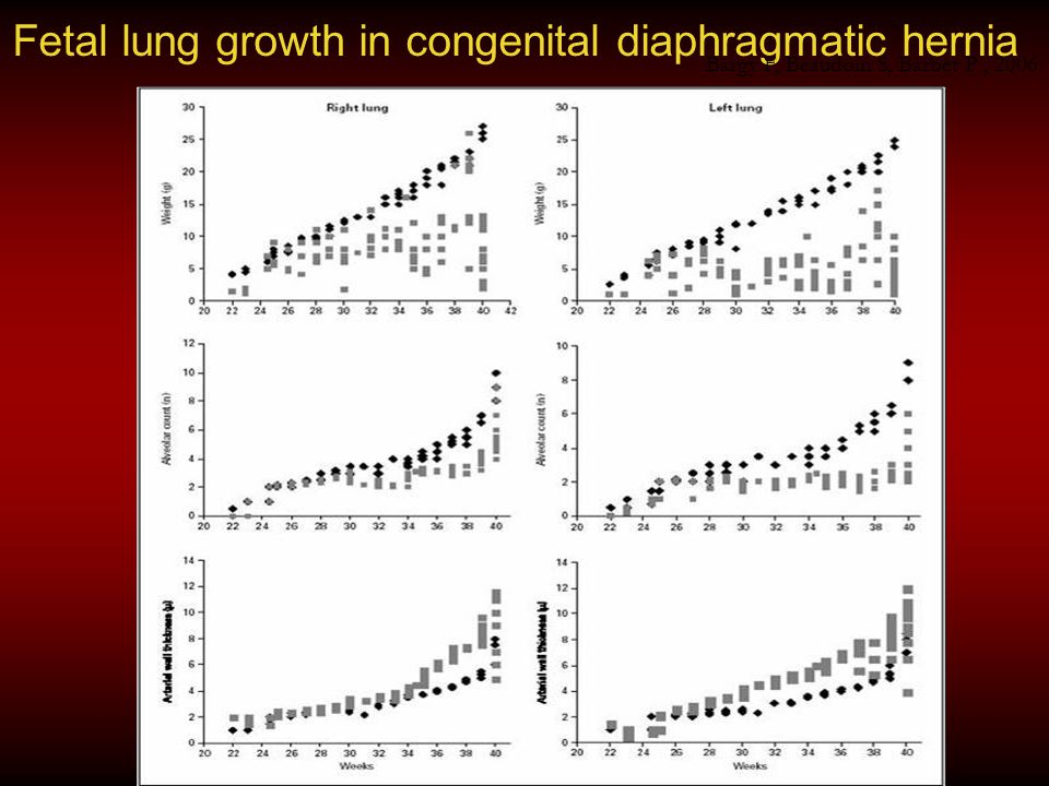 Fetal lung growth in congenital diaphragmatic hernia