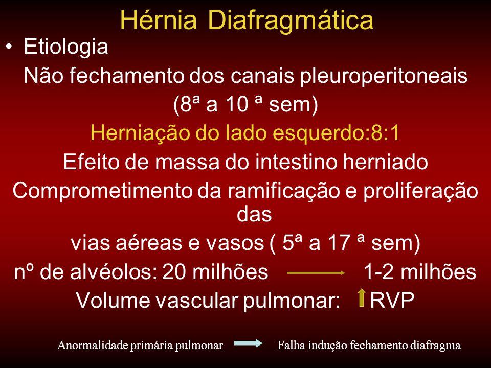 Hérnia Diafragmática Etiologia