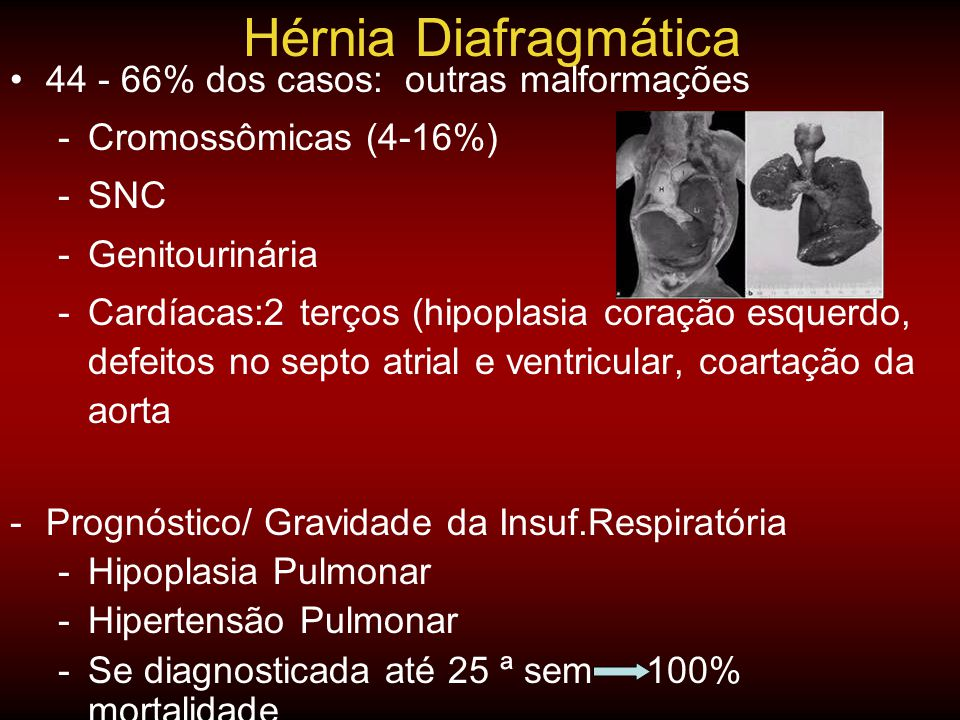 Hérnia Diafragmática 44 - 66% dos casos: outras malformações