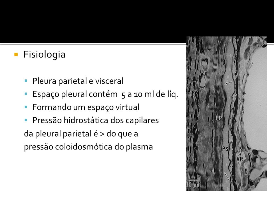 Fisiologia Pleura parietal e visceral