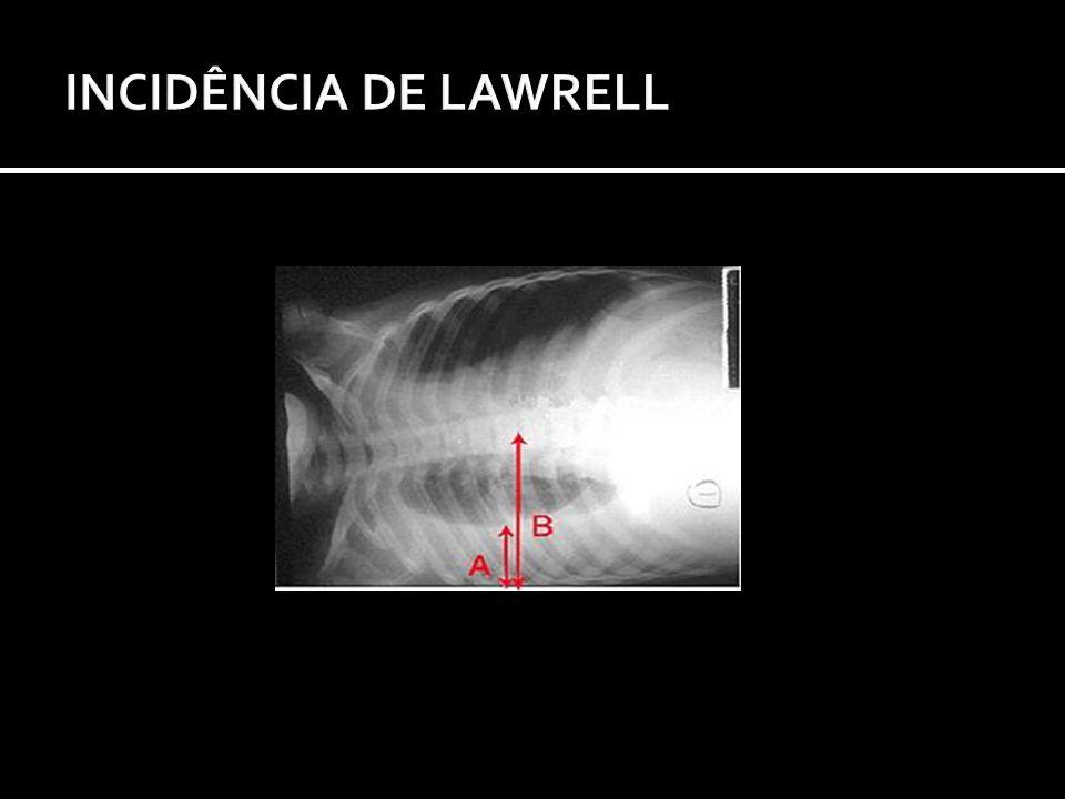 INCIDÊNCIA DE LAWRELL