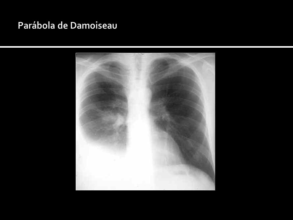 Parábola de Damoiseau
