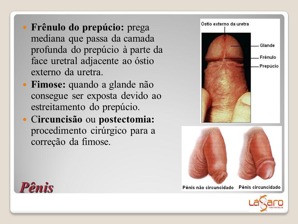 Frênulo do prepúcio: prega mediana que passa da camada profunda do prepúcio à parte da face uretral adjacente ao óstio externo da uretra.
