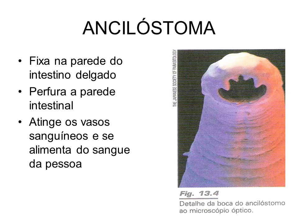 ANCILÓSTOMA Fixa na parede do intestino delgado