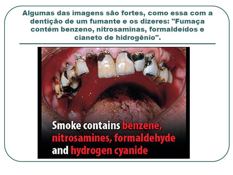 Algumas das imagens são fortes, como essa com a dentição de um fumante e os dizeres: Fumaça contém benzeno, nitrosaminas, formaldeídos e cianeto de hidrogênio .