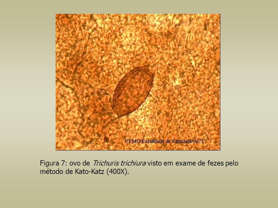 Figura 7: ovo de Trichuris trichiura visto em exame de fezes pelo método de Kato-Katz (400X).