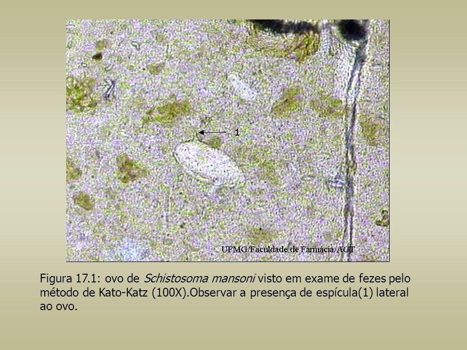 Figura 17.1: ovo de Schistosoma mansoni visto em exame de fezes pelo método de Kato-Katz (100X).Observar a presença de espícula(1) lateral ao ovo.