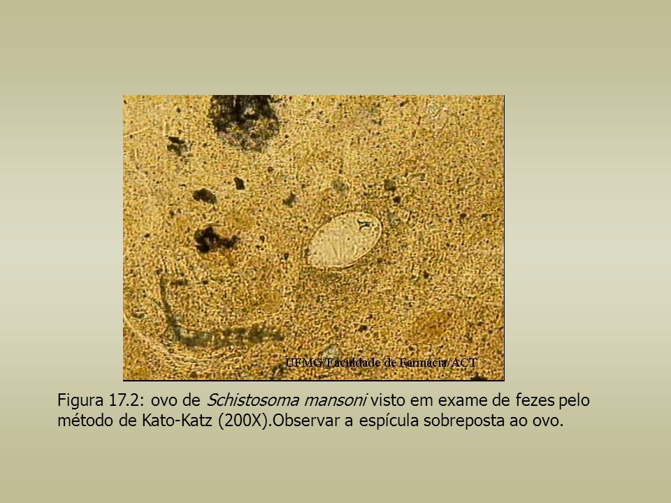 Figura 17.2: ovo de Schistosoma mansoni visto em exame de fezes pelo método de Kato-Katz (200X).Observar a espícula sobreposta ao ovo.