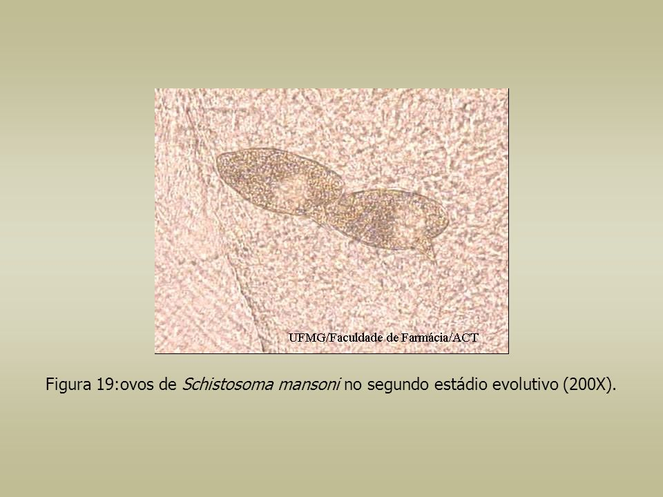 Figura 19:ovos de Schistosoma mansoni no segundo estádio evolutivo (200X).