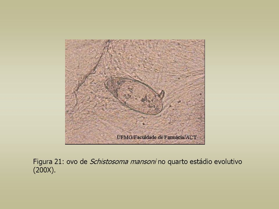 Figura 21: ovo de Schistosoma mansoni no quarto estádio evolutivo (200X).