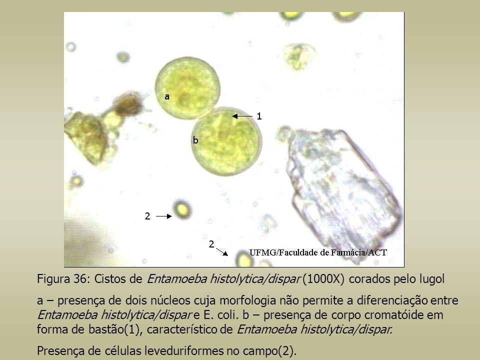 Figura 36: Cistos de Entamoeba histolytica/dispar (1000X) corados pelo lugol