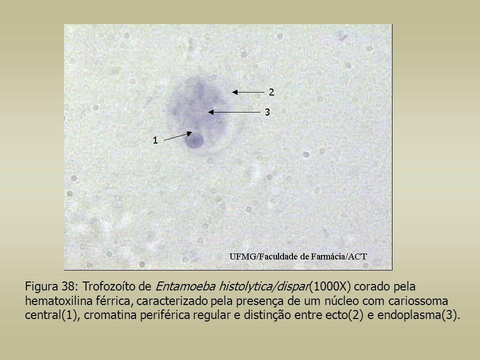 Figura 38: Trofozoíto de Entamoeba histolytica/dispar(1000X) corado pela hematoxilina férrica, caracterizado pela presença de um núcleo com cariossoma central(1), cromatina periférica regular e distinção entre ecto(2) e endoplasma(3).