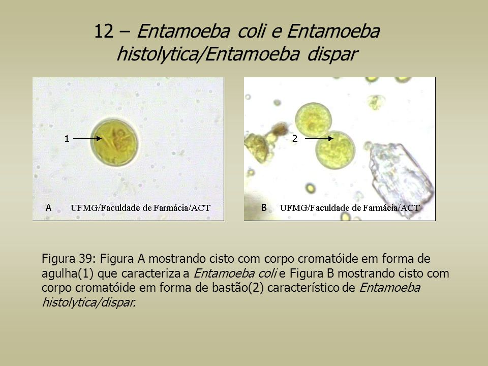 12 – Entamoeba coli e Entamoeba histolytica/Entamoeba dispar