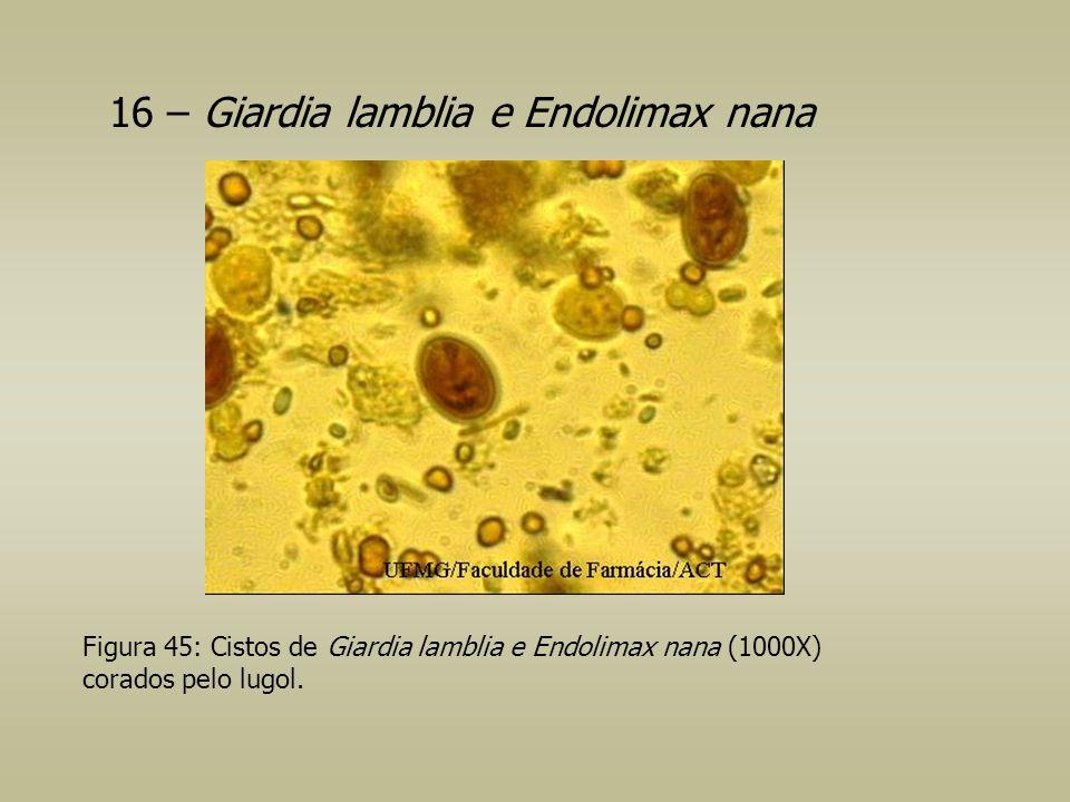 16 – Giardia lamblia e Endolimax nana