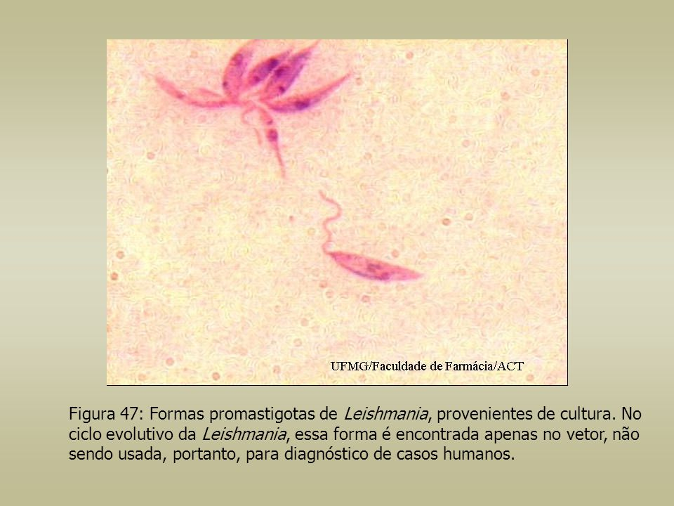 Figura 47: Formas promastigotas de Leishmania, provenientes de cultura
