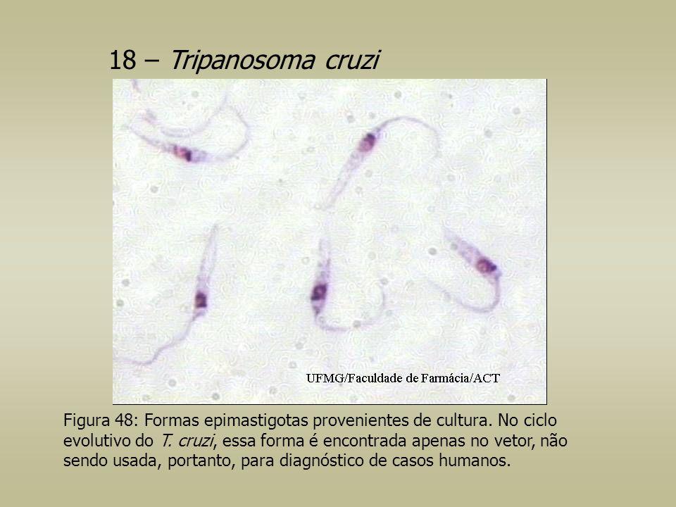 18 – Tripanosoma cruzi