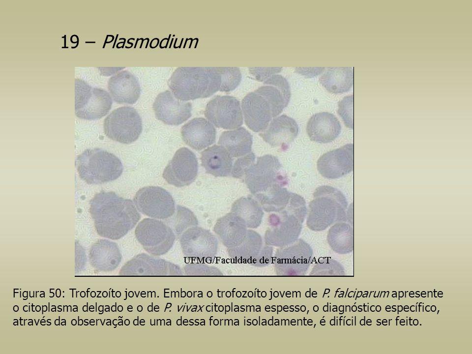 19 – Plasmodium