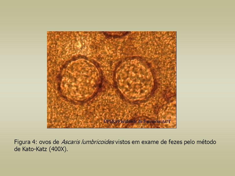 Figura 4: ovos de Ascaris lumbricoides vistos em exame de fezes pelo método de Kato-Katz (400X).