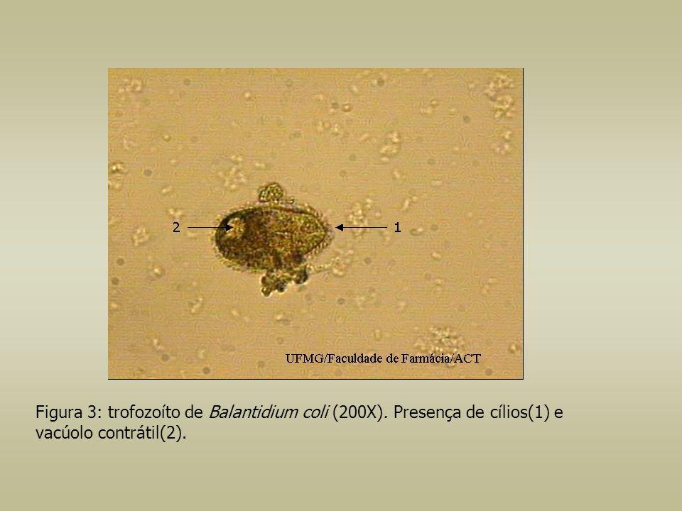 Figura 3: trofozoíto de Balantidium coli (200X)
