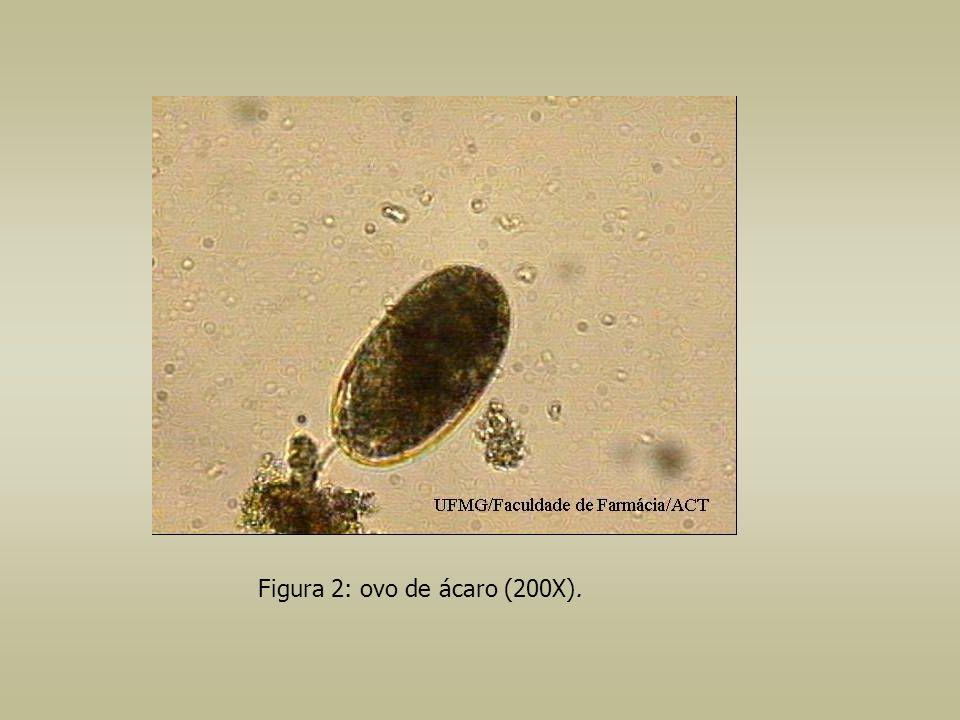 Figura 2: ovo de ácaro (200X).