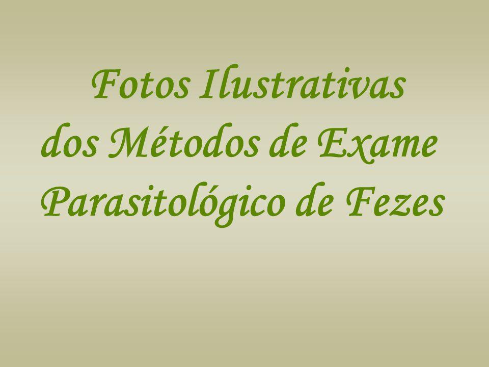 Fotos Ilustrativas dos Métodos de Exame Parasitológico de Fezes
