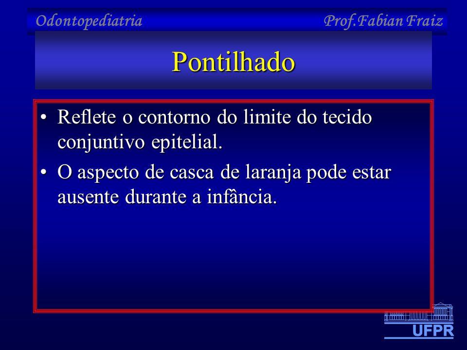 Pontilhado Reflete o contorno do limite do tecido conjuntivo epitelial.