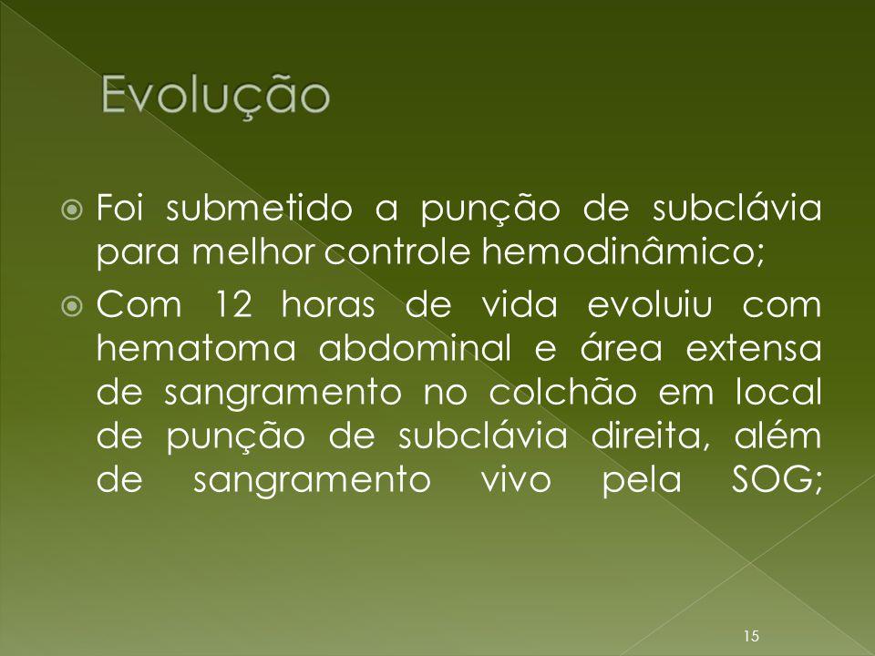 Evolução Foi submetido a punção de subclávia para melhor controle hemodinâmico;