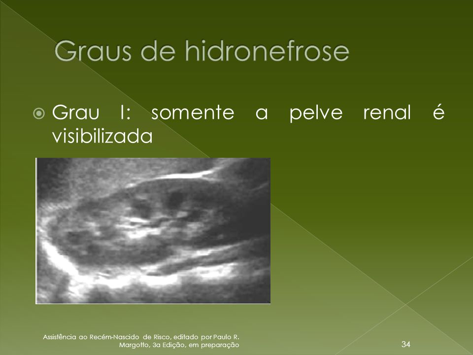 Graus de hidronefrose Grau I: somente a pelve renal é visibilizada