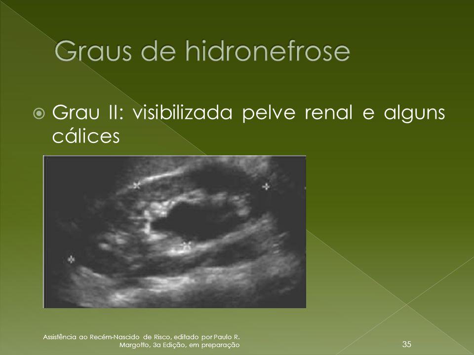 Graus de hidronefrose Grau II: visibilizada pelve renal e alguns cálices.