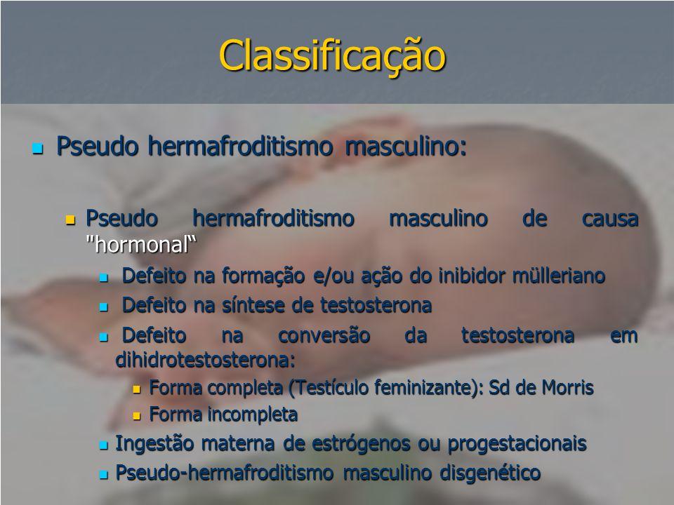 Classificação Pseudo hermafroditismo masculino: