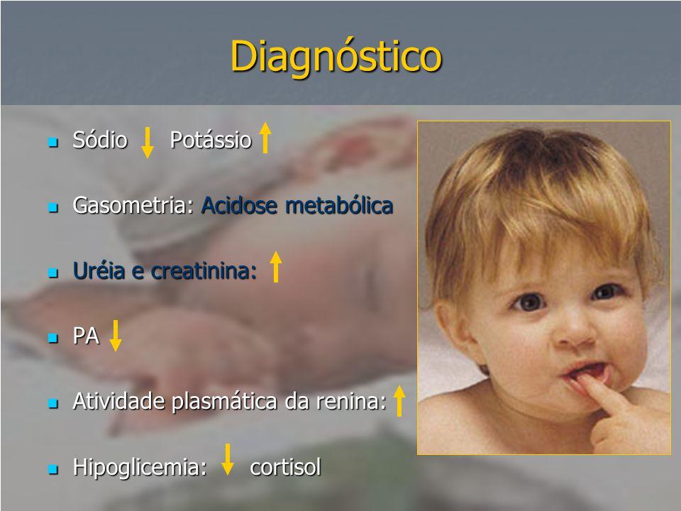 Diagnóstico Sódio Potássio Gasometria: Acidose metabólica