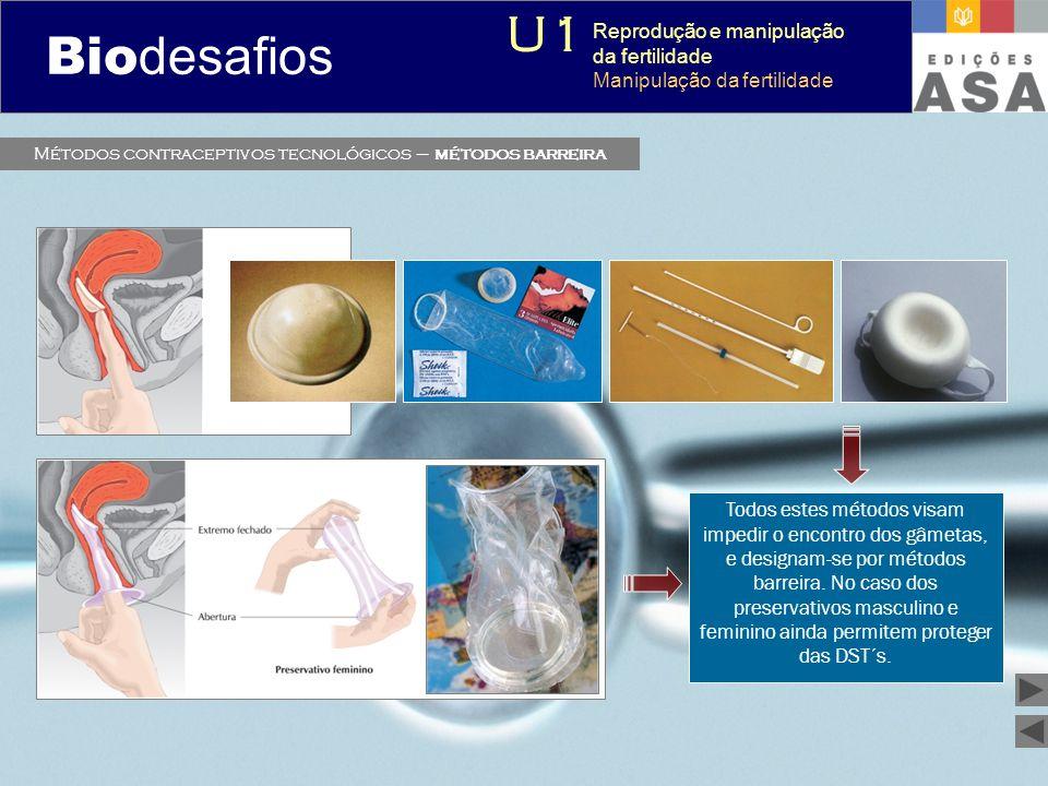 Métodos contraceptivos tecnológicos – métodos barreira