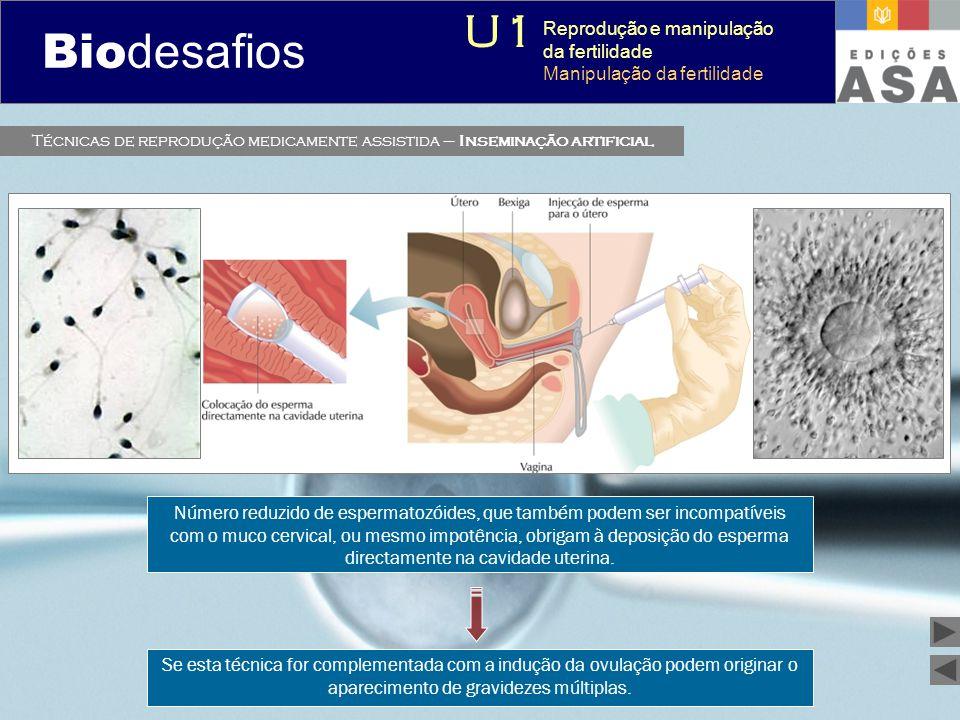 Técnicas de reprodução medicamente assistida – Inseminação artificial