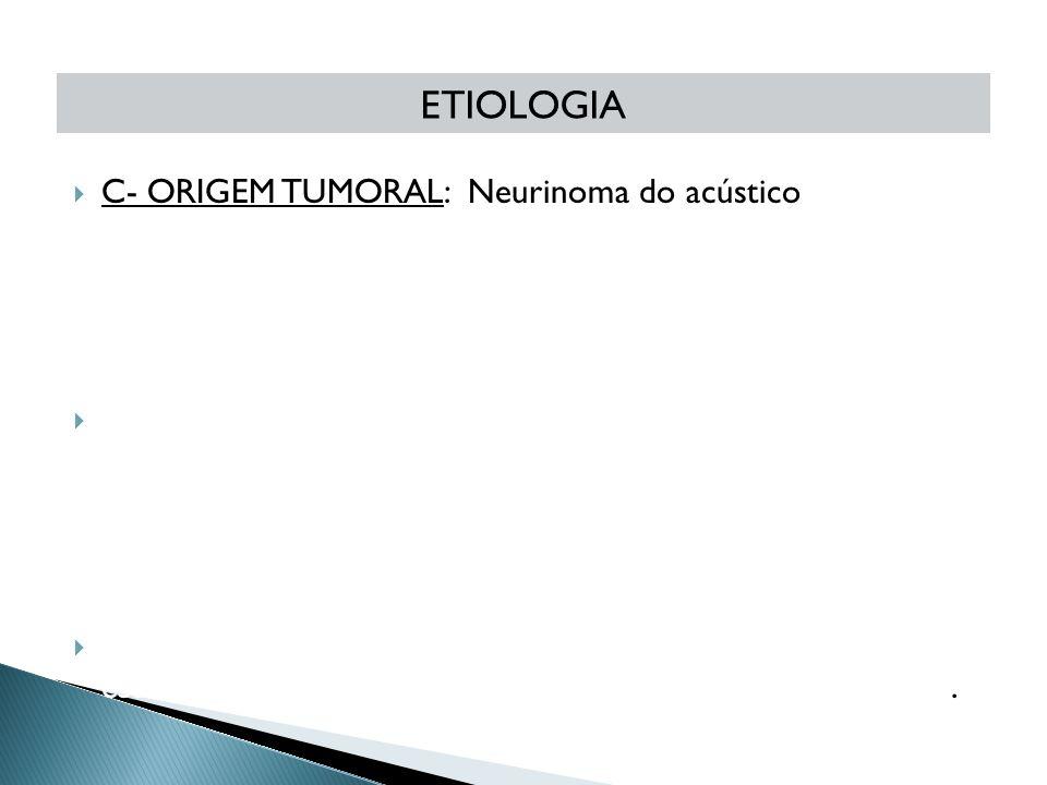 ETIOLOGIA C- ORIGEM TUMORAL: Neurinoma do acústico