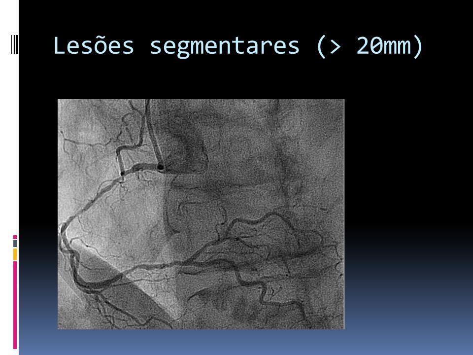 Lesões segmentares (> 20mm)