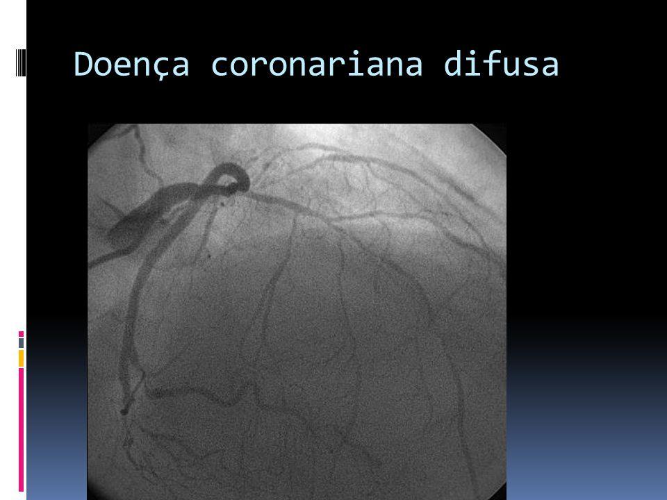 Doença coronariana difusa