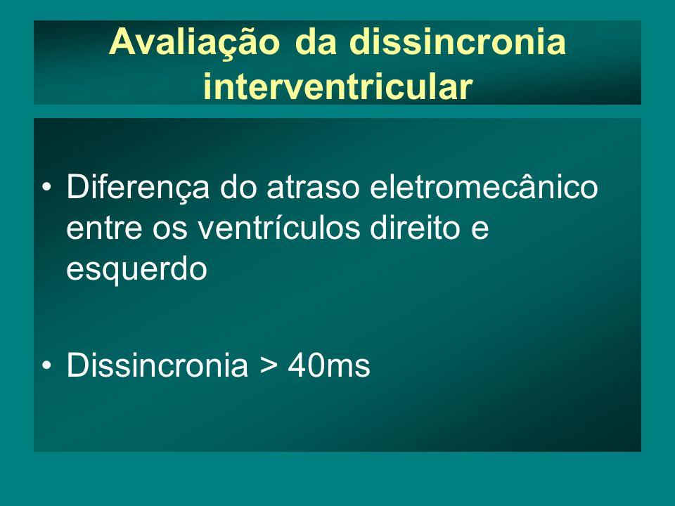 Avaliação da dissincronia interventricular