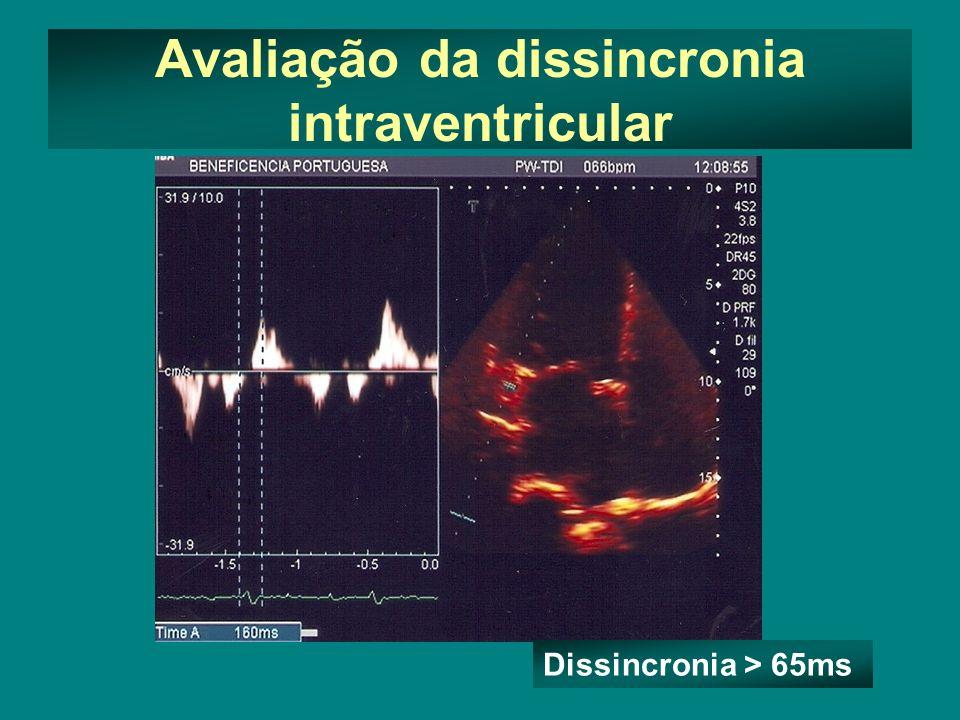Avaliação da dissincronia intraventricular