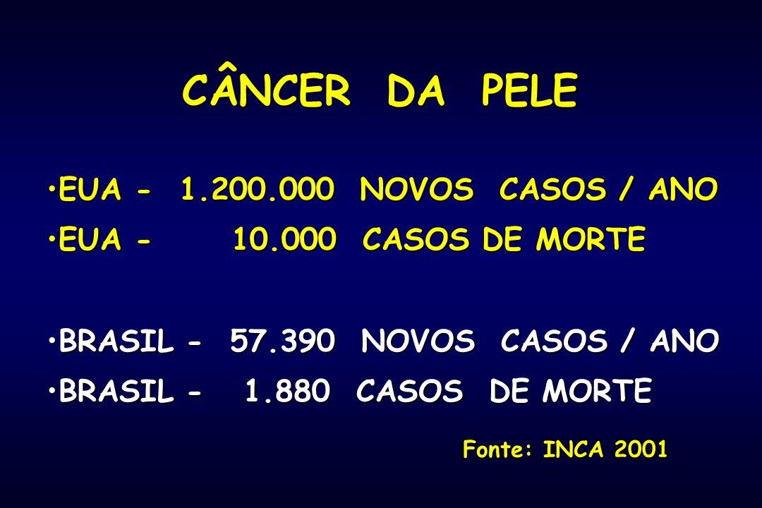 CÂNCER DA PELE EUA - 1.200.000 NOVOS CASOS / ANO