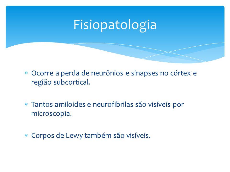 Fisiopatologia Ocorre a perda de neurônios e sinapses no córtex e região subcortical. Tantos amiloides e neurofibrilas são visíveis por microscopia.