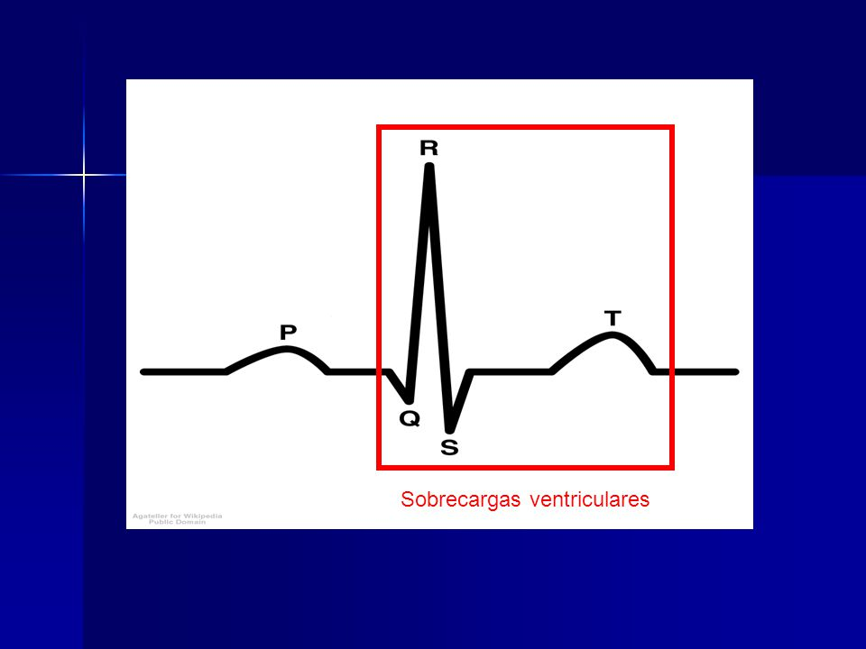 Sobrecargas ventriculares