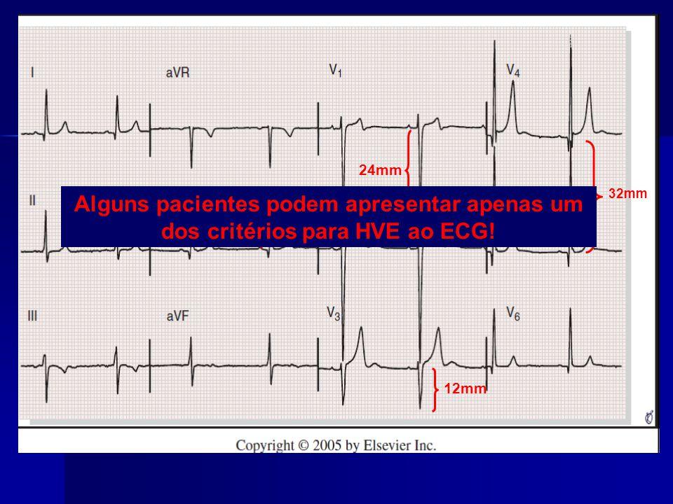 24mm 32mm Alguns pacientes podem apresentar apenas um dos critérios para HVE ao ECG! 10mm 12mm