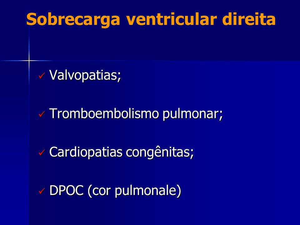 Sobrecarga ventricular direita